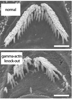 An auditory steriocilia bundle from normal (top) and from gamma-actin-deficient (bottom) mouse