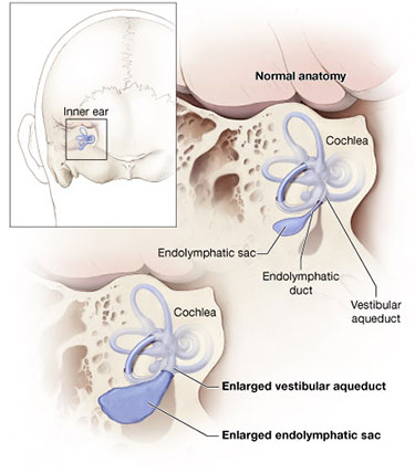 Diagram of normal inner ear and enlarged vestibular aqueduct, showing the cochlea, endolymphatic sac, endolymphatic duct, vestibular aqueduct, enlarged vestibular aqueduct, and enlarged endolymphatic sac.