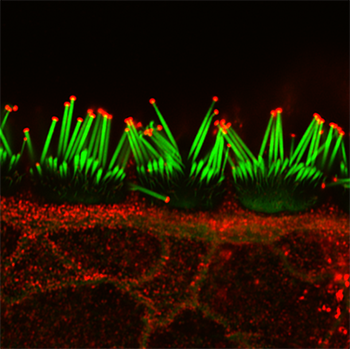 P15 mouse inner hair cells of the organ of Corti used for immunofluorescent detection of actin filaments (shown in green, Phaloidin-488) and Eps8 (shown in red) by confocal microscopy superresolution imaging.