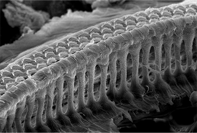 An electron microscope image of the inner ear showing rows of sensory hair cells.