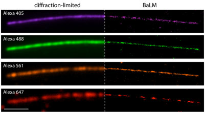 Bleaching/blinking assisted localization microscopy, or BaLM, allows researchers to better visualize cellular structures