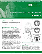 Ronquera (Hoarseness)