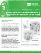 Acueductos vestibulares dilatados y la pérdida de audición en los niños (Enlarged Vestibular Aqueducts and Childhood Hearing Loss)