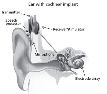 Illustration of cochlear implant.